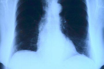 Lungenentzüdung
